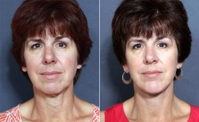 Dr. Brahme Rhinoplasty and Chin Enlargement