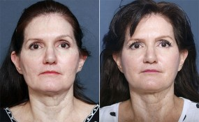 Dr Smoot Facelift, Forehead Lift, and Neck Lift