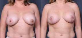 Dr. Saltz Breast Lift 15
