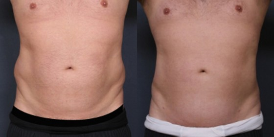 Dr. Saltz Male Liposuction Patient 1