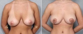 Dr. Brahme Breast Lift 3