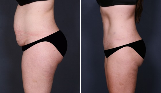before and after tummy tuck photo