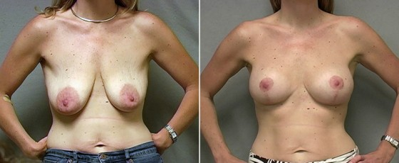 Dr. Saltz Breast Lift Patient 1