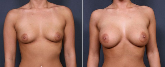 Dr. Saltz Breast Augmentation Patient 1