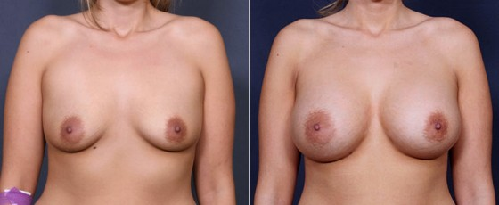 dr-saltz-breast-augmentation-44a