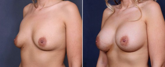 dr-saltz-breast-augmentation-44b