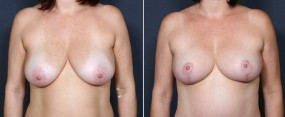 Dr. Saltz Breast Lift 4