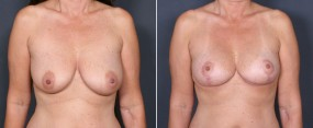 Dr. Saltz Breast Lift 5