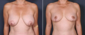 Dr. Saltz Breast Lift 8