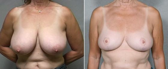 Dr. Saltz Breast Reduction Patient 1